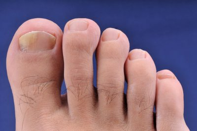 Nail Fungus Prevention by Advanced Foot and Ankle Specialists